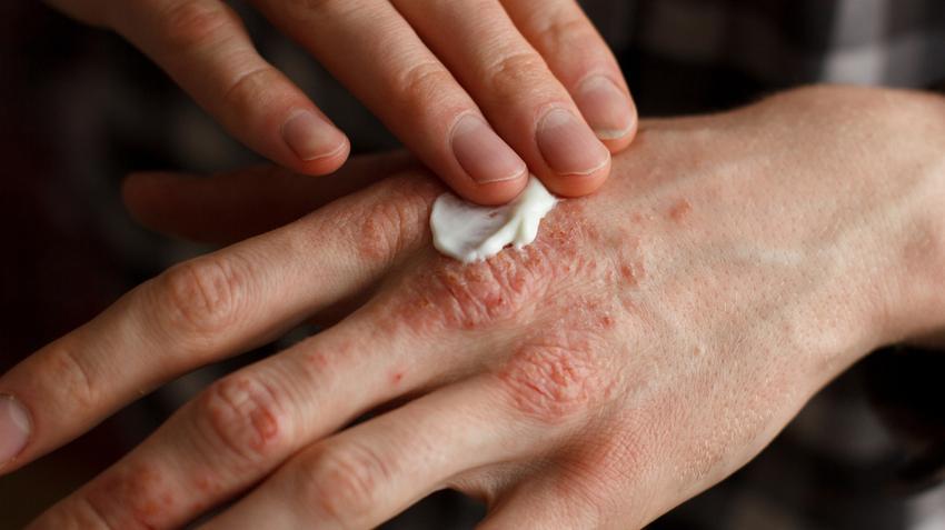 vörösség az ujjak között)