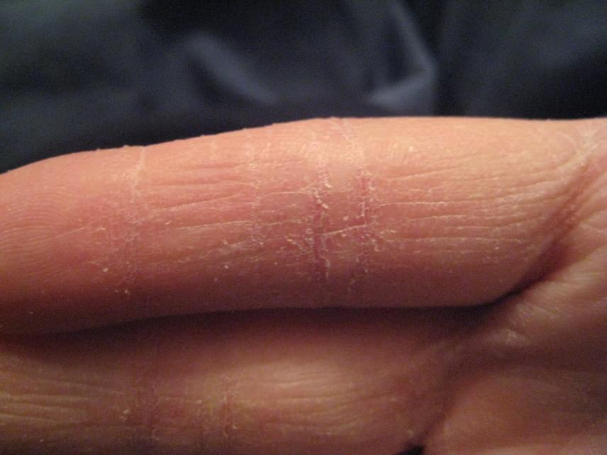piros foltokat süt az ujjakon