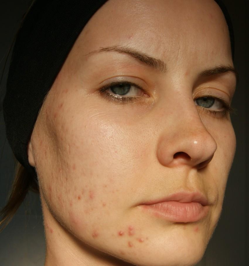 vörös foltok az arcon megfázás után)