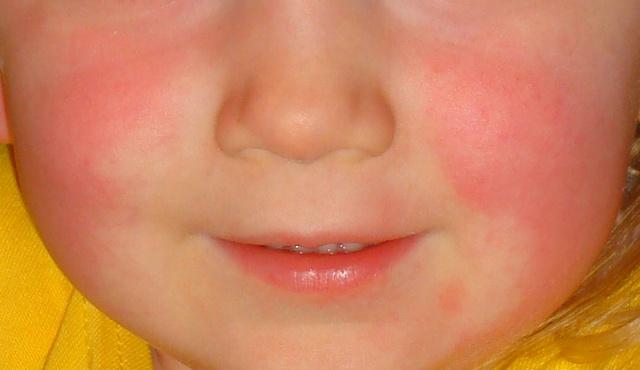 vörös foltok a betegség arcán a gyomor foltjai pirosak