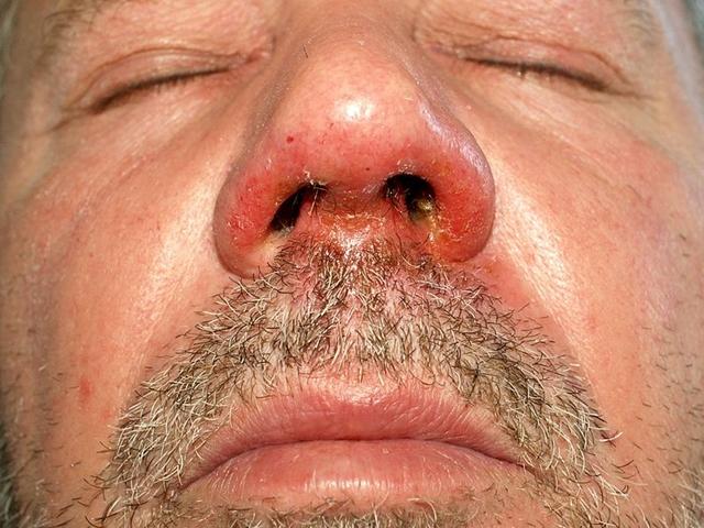 Vörös pikkelyes foltok az orr körül, Tudta, Milyen betegségre utalnak a vörös foltok?